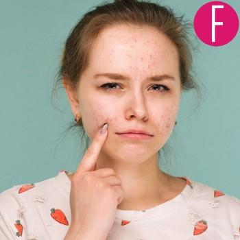Acne, pimples, acne treatment