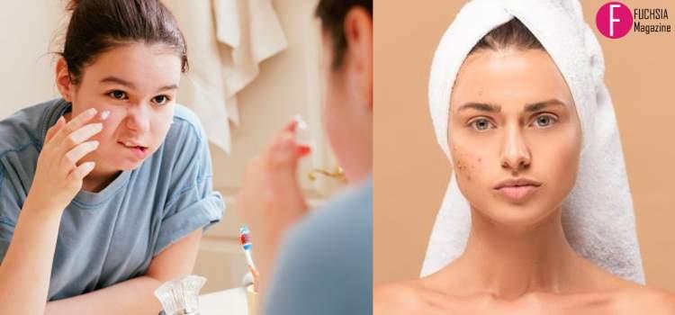 prevent acne, how to prevent acne